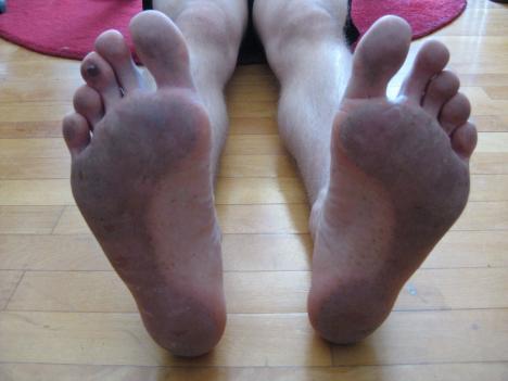 Billede af fødder efter barfodsløb.